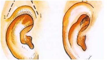 隐耳整形手术妙招有几点