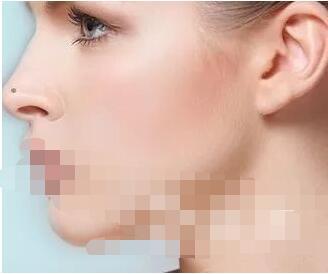 今日大爆料:驼峰鼻矫正术恢复期