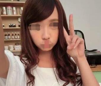 北京雅靓整形光子嫩肤案例 分享我术后的皮肤变化的心得
