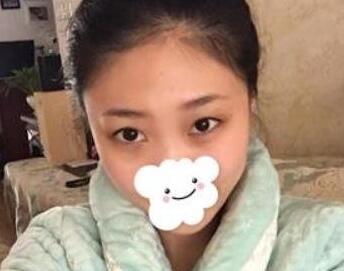 北京清木整形双眼皮手术案例