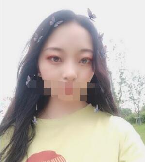 北京永成魅力整形田永成祛眼袋案例