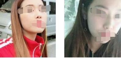 三亚维多利亚整形隆鼻案例