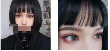 西安叶子整形做切开双眼皮案例