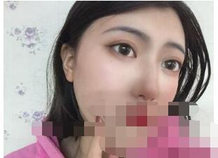 北京永成魅力整形田永成做隆鼻案例
