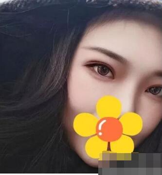 北京永成魅力整形王清明做双眼皮案例
