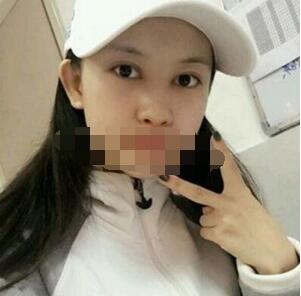 北京永成魅力整形李传康做双眼皮案例