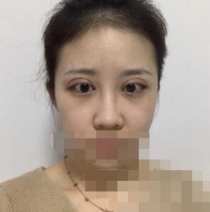 北京永成魅力医院张耀辉做双眼皮案例