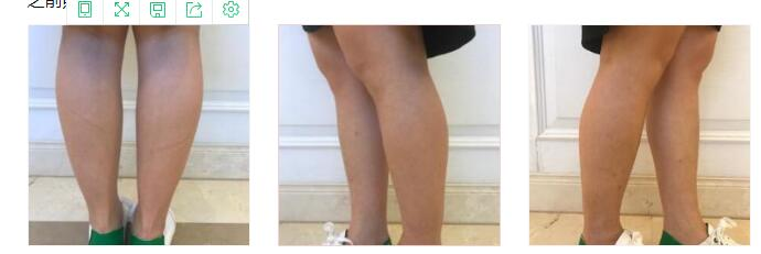 昆明梦想整形肉毒素瘦小腿案例 变身瘦腿小姐姐