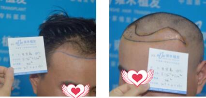 杭州雍禾植发整形做头发种植案例 分享365天后我的秀发长出来了