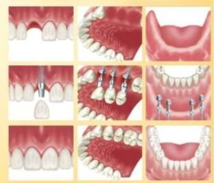 種植牙步驟分解以及必須具有的口腔科標準