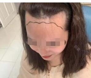 在北京南加整形锐变:唐道臣头发种植案例 附加术后效果图+心得