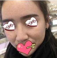 新疆华美整形膨体隆?#21069;?#20363; 整张脸都变的小巧、精致了很多