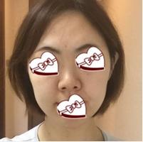 青岛伊美尔国宾整形杨文国医生鼻综合案例 变得更加自信了
