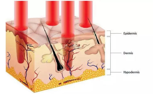 為什么疤痕使用激光治療很靠譜?