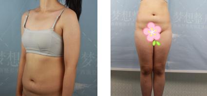 昆明梦想整形李成龙医生全身吸脂案例 没有出现凹凸不平的情况
