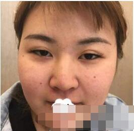 我的吸脂经历:北京八大处整形王淑杰做面部案例 术后90天特满意