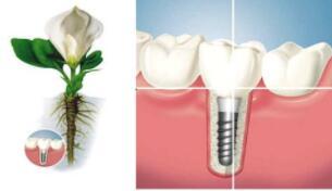 福州种植牙分三大体系