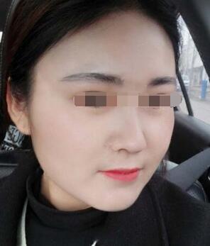 北京聯合麗格整形夏文華做超聲刀除皺案例 術后煥發年輕肌膚點贊