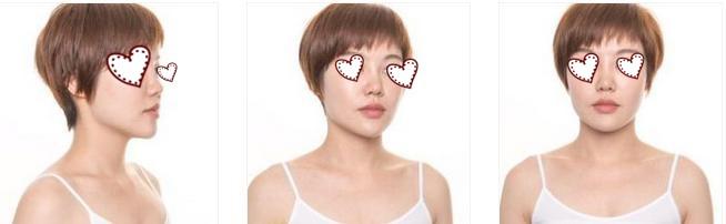 廣州曙光整形肋軟骨隆鼻案例 整個人年輕、好看了