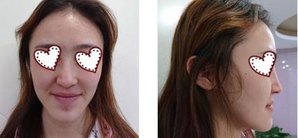 云南華美美萊整形洪曉婭醫生自體肋軟骨隆鼻案例 俏鼻的渴望