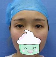 东?#25954;技?#22777;整形王擎医生眼部综合术案例 做到了闭眼无痕