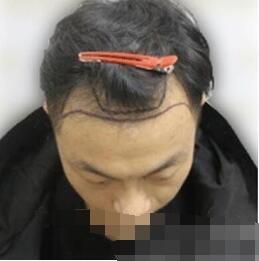 治疗秃顶我是认真的 记录北京联合丽格整形张菊芳做头发种植案例