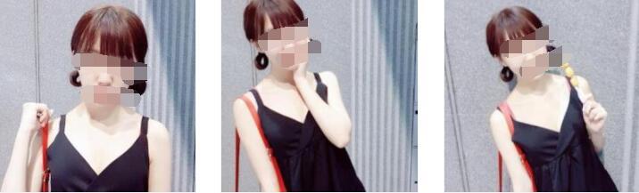 深圳福华整形假体隆胸案例 术后30天的变化心得附变化图