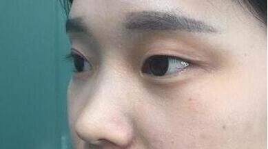 成都莱尹整形刘辅蓉双眼皮案例 术后一年才来跟大家分享