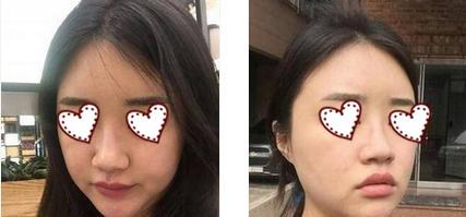 内江洋子整形鼻综合术案例 精致的鼻子