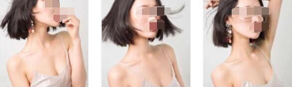 广州曙光整形刘杰伟医生乳房下垂矫正案例