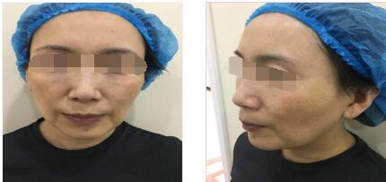 济南美辰整形做自体脂肪填充全脸案例 跟大家分享我肌肤变美经历