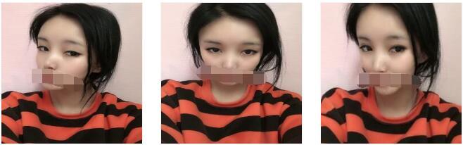 上海玫瑰整形做切开双眼皮案例 有空跟大家分享?#24050;?#30555;变美的经历