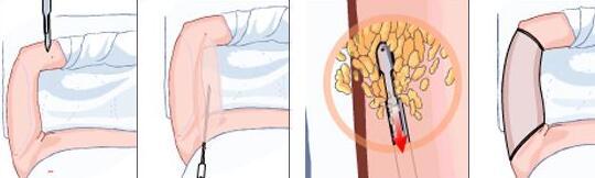 手臂吸脂的眾多方式,看看自己適合哪種