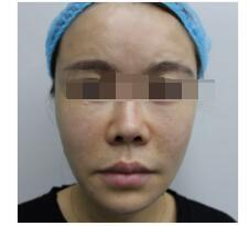 济南美辰整形做M唇手术案例 反馈60天后美唇既性感又好看的事