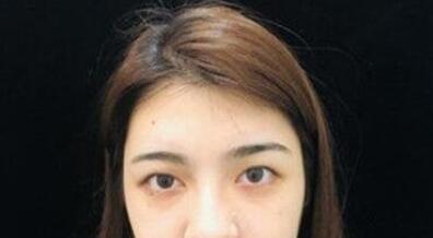 广州双眼皮案例 术后一个月时间来分享下个人变美历程