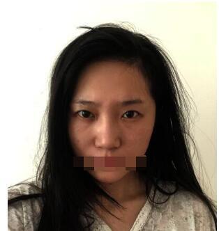 北大三院整形李东做双眼皮案例 反馈一下终于摆脱肿泡眼的经历