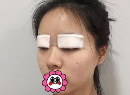 郑大一附院整形王琪医生双眼皮案例
