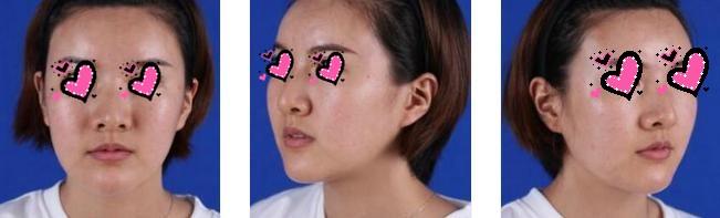 上海美莱整形玻尿酸丰太阳穴案例 脸部饱满,更青春活力了