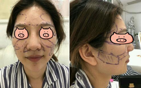 南京华美自体脂肪填充全脸案例 面部线条柔和好多