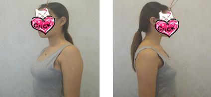 南京美贝尔整形黄名斗医生自体脂肪丰胸案例 身材很丰满,很满意