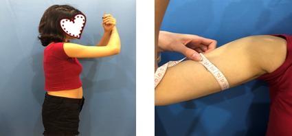 南京美贝尔整形张永升医生手臂吸脂案例 我也有纤细的胳膊了