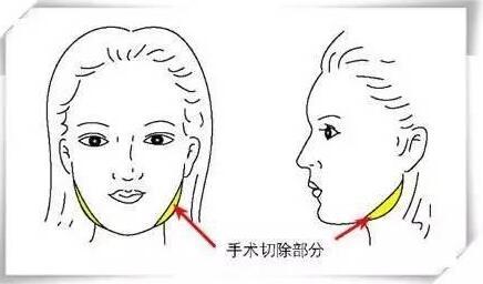 治疗下颌角肥胖常用的方法