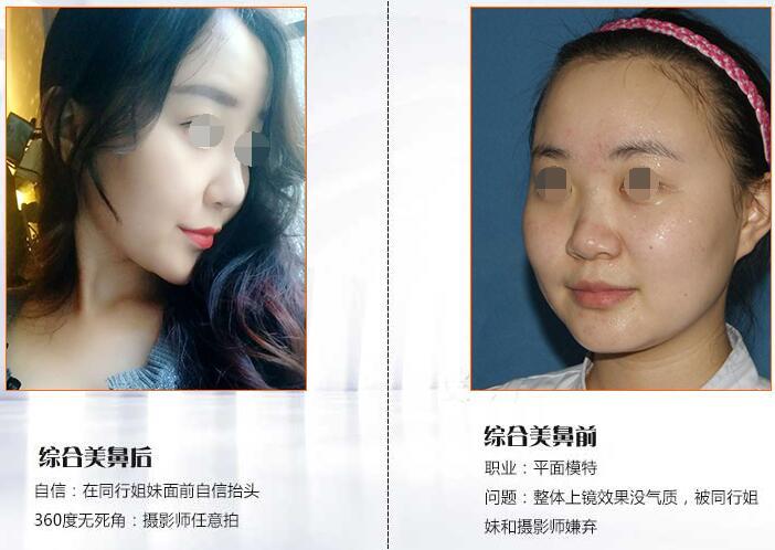2019年深圳整形醫院各大項目MVP榜