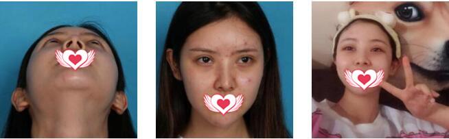 四川华美紫馨医院陈杨做耳软骨复合隆鼻案例 附美鼻恢复记录全程