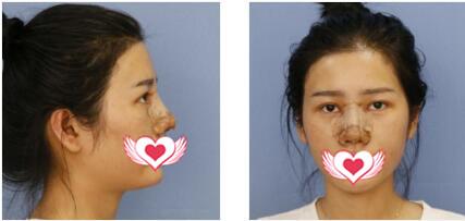 佛山梦露整形游万福做隆鼻案例 反馈180天后美鼻变得很自然 附图