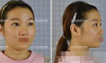 南宁美丽焦点整形焦俊光做隆鼻案例 反馈鼻子完美锐变美鼻经历