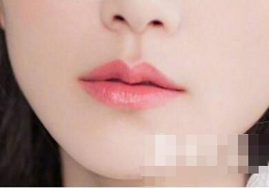 今日熱搜:漂唇后2-3個月恢復正常