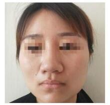 淮安华美整形做鼻部综合术案例 反馈了让我的颜值提升了好几档
