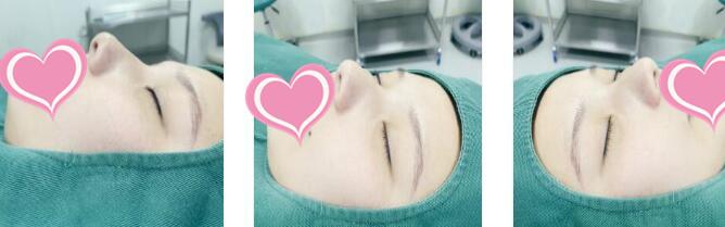 淮安华美整形隆鼻手术案例 看看术后20天的我