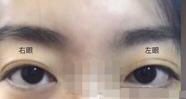 ?#26412;?#21307;院整形钱文江医生全切双眼皮案例 术后一个月了来分享了